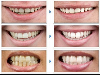 Безопасно ли отбеливание зубов